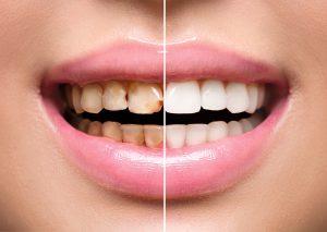restoring teeth